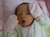 2010.10.01~10月14日 Dora 24天前點滴:10月02日 正在脫皮的瓊憶(俗稱退胎毒).JPG