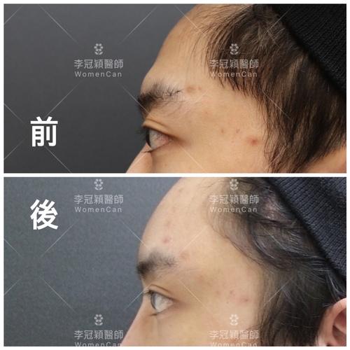 IMG_0914.JPG - 墊額頭