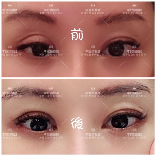 IMG_0180.JPG - 眼鼻眼頭