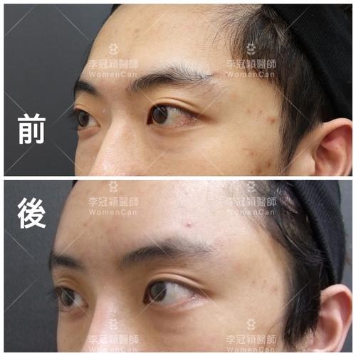 IMG_0910.JPG - 墊額頭